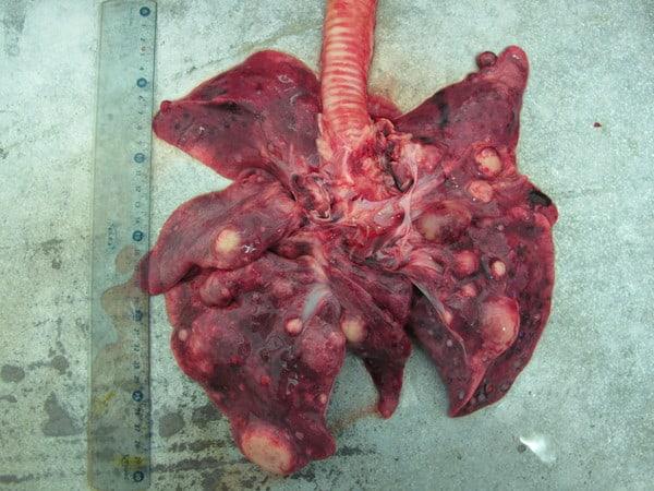 Метастазы рака кишечника в лёгкие