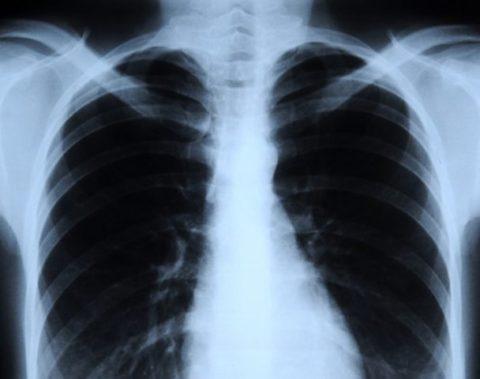 Нулевая (Carcinoma in situ)