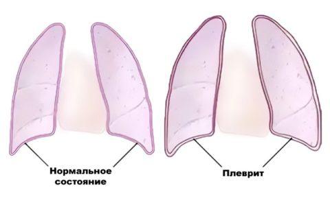 Симптомы плеврита легких