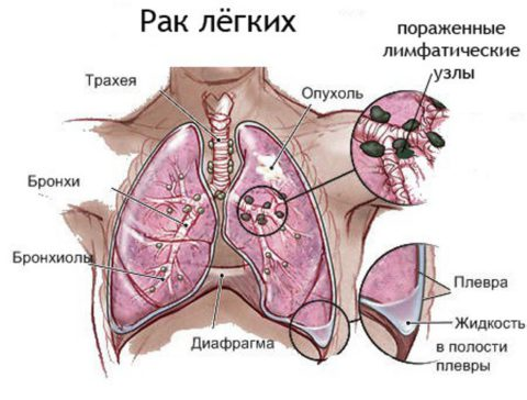 Воспаленные лимфоузлы и плевральный выпот на терминальной стадии рака легких
