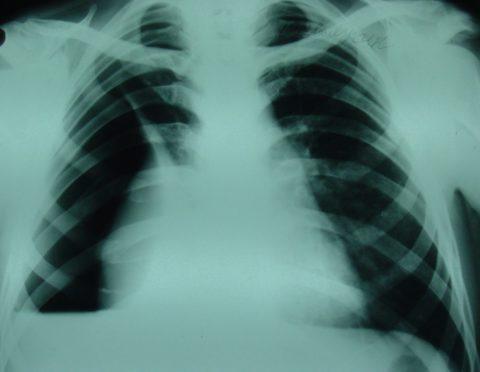 Затемнение на рентгенограмме – эмпиема плевры (плеврит)