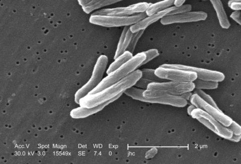 Фото палочки Коха (Mycobacterium tuberculosis) под микроскопом