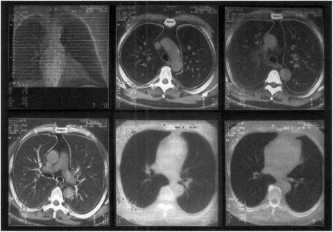 КТ или МРТ легких