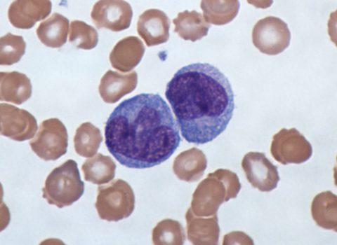 Миелоцит – предшественник лейкоцита, в норме находится в костном мозге, но не в периферической крови.