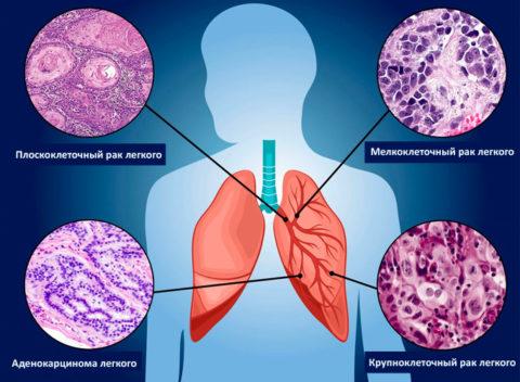 Гистологические отличия основных видов рака легких
