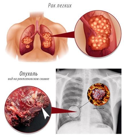Первые и вторая стадии рака, как правило, протекают бессимптомно