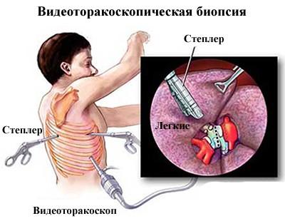 Трансторокальная пункционная биопсия