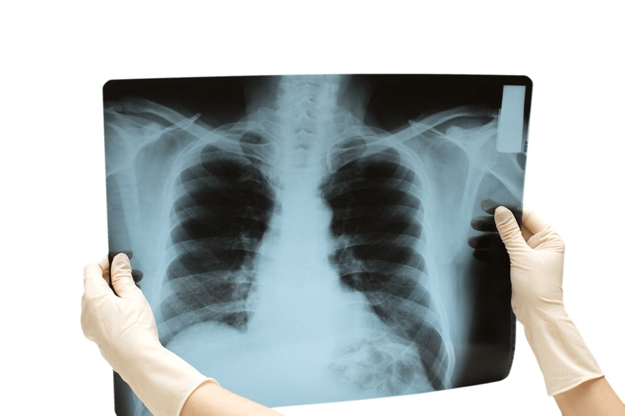 Рентген грудной клетки – основной метод диагностики при воспалении легких