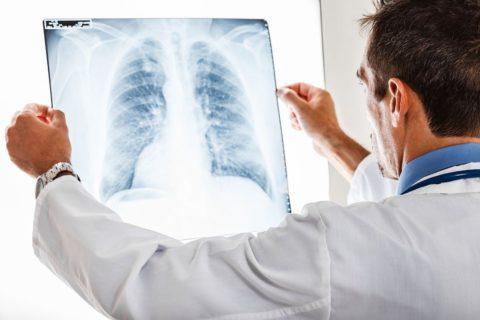 Иногда только на рентгеновском фото можно увидеть причину плохого самочувствия человека