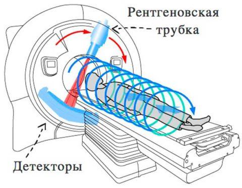 Мультиспиральная КТ-томография помогает уточнять или устанавливать диагноз в сложных ситуациях