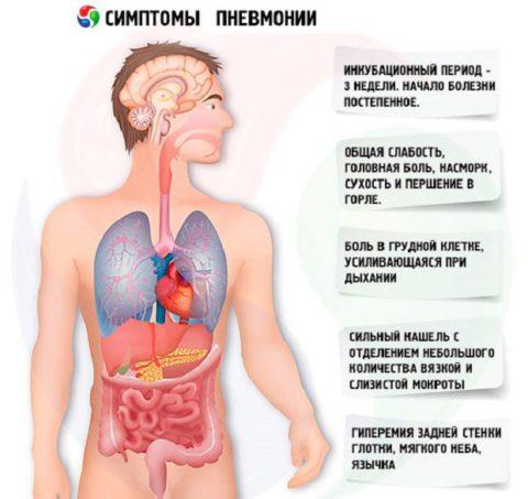 Основные признаки воспаления легких
