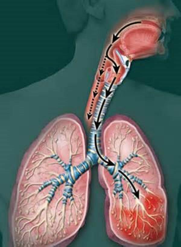 Нарушение взаимодействия пищевых и дыхательных путей