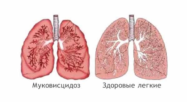 Легочные болезни или патологии грудной клетки