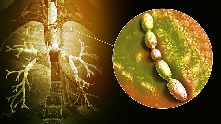 Бактерии – причина опасной бактериальной пневмонии