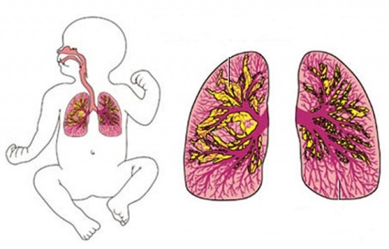 Легкие отвечают за жизнедеятельность всех органов и систем организма