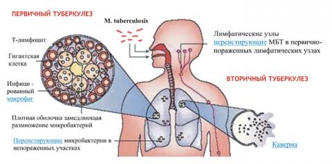 Схема начальных стадий туберкулеза