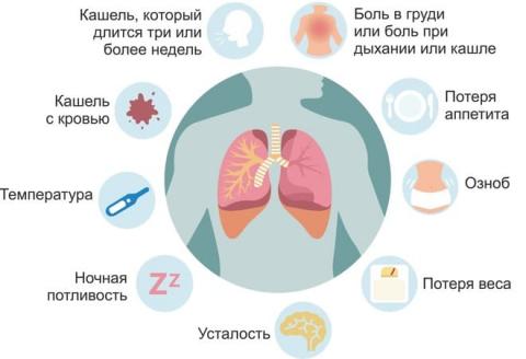 Признаки туберкулеза