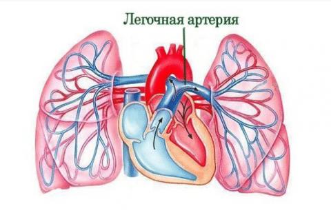Разрастание фиброзной ткани приводит к сдавлению легочных сосудов, что вызывает гипертензию