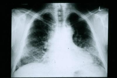 Пневмофиброз или фиброз