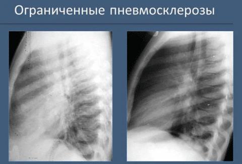 Склероз или пневмосклероз