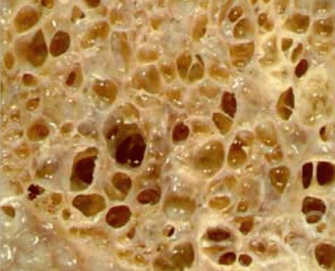 Кистозные изменения (сотовое легкое) в легочной ткани