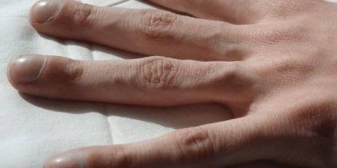 Синдром барабанных палочек на руках
