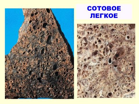 Примеры изменений легочной ткани при фиброзе