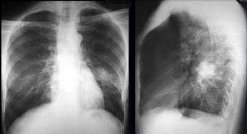 Очаговая пневмония на флюорографии (пленочное изображение в 2-х проекциях)